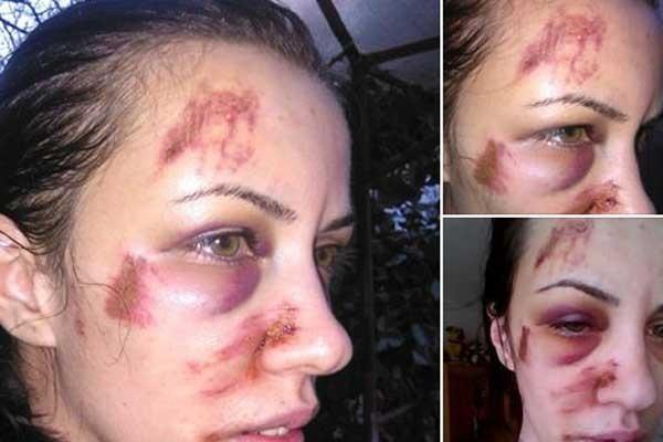 Clipe de coşmar pentru o femeie din Tulcea: Am fost bătută fostul concubin, iar Poliţia nu face nimic!