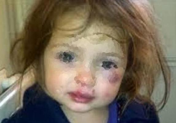 O fetiță de opt ani din Republica Moldova a fot mutilată pe viață, de tatăl vitreg.